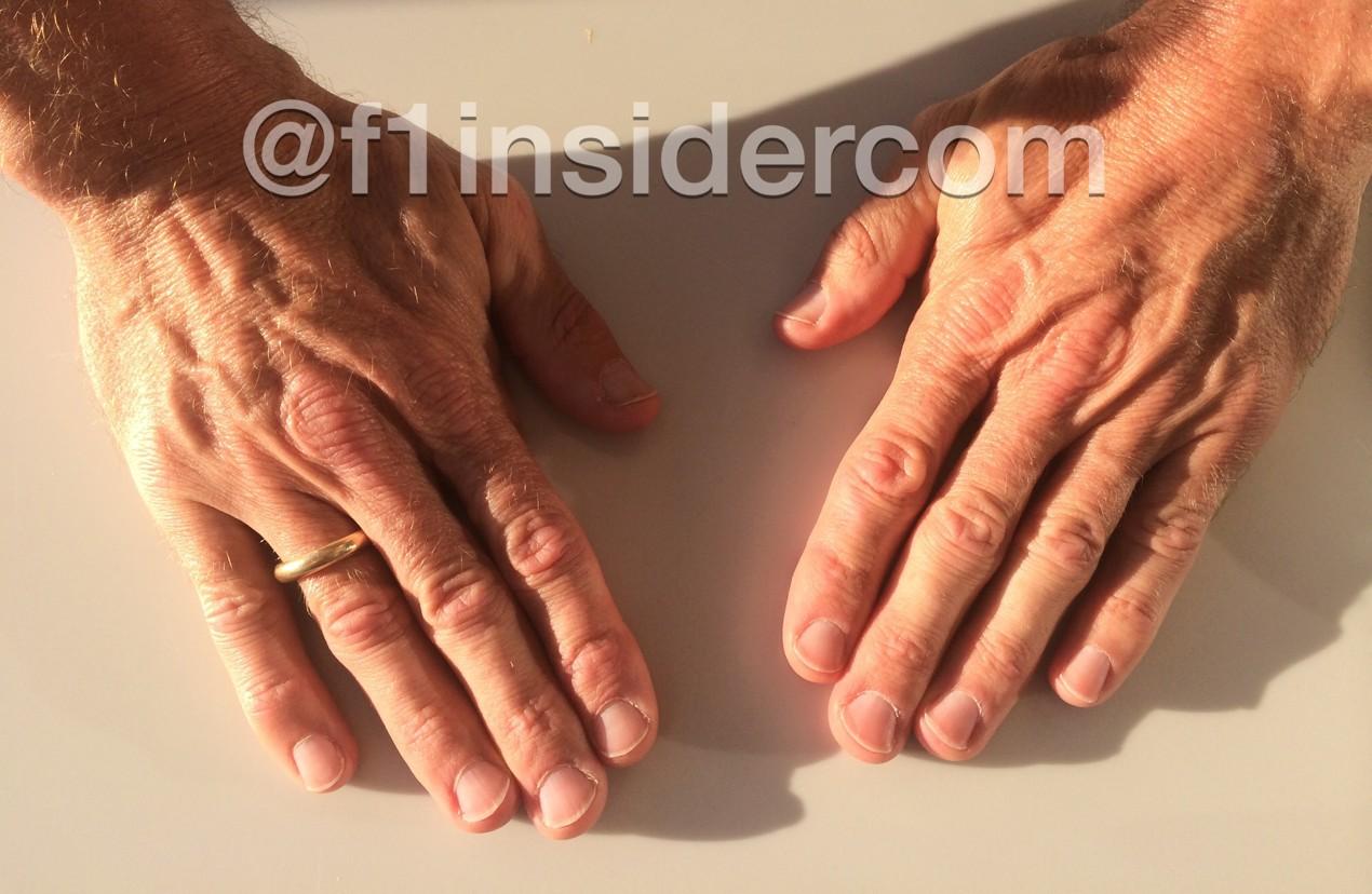 Die Hände von Senna-Physio Jo Leberer. Copyright: privat