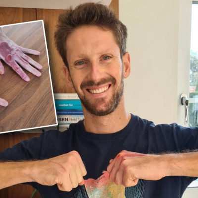 Romain Grosjean zeigt linke Hand ohne Verband; Credit: Grosjean/Instagram
